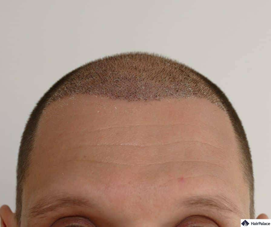 Jessy's implanted area a week after the hair transplant with some scabs visible