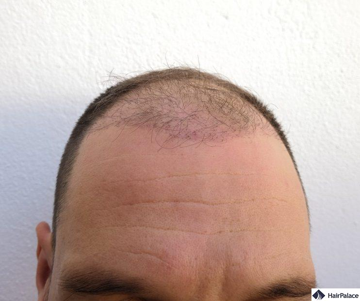 The recipient area 3 months after the surgery with the hairs fallen out