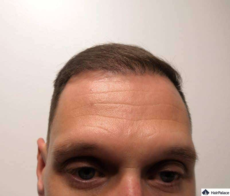 Partial result at the hairline 6 months after the FUE2 hair transplant