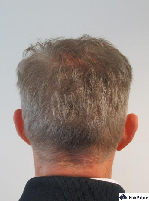 Thicker crown and fully healed donor area a year after the hair restoration
