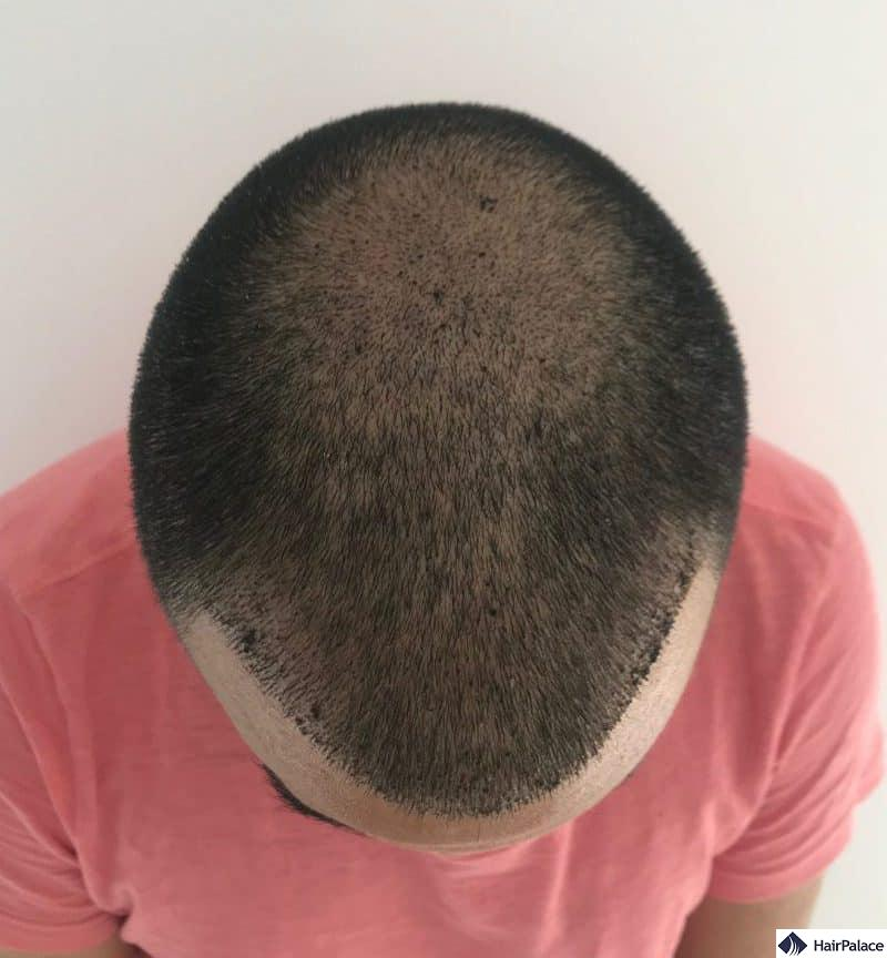 first check-up photo 1 week after the hair transplant with scabs visible