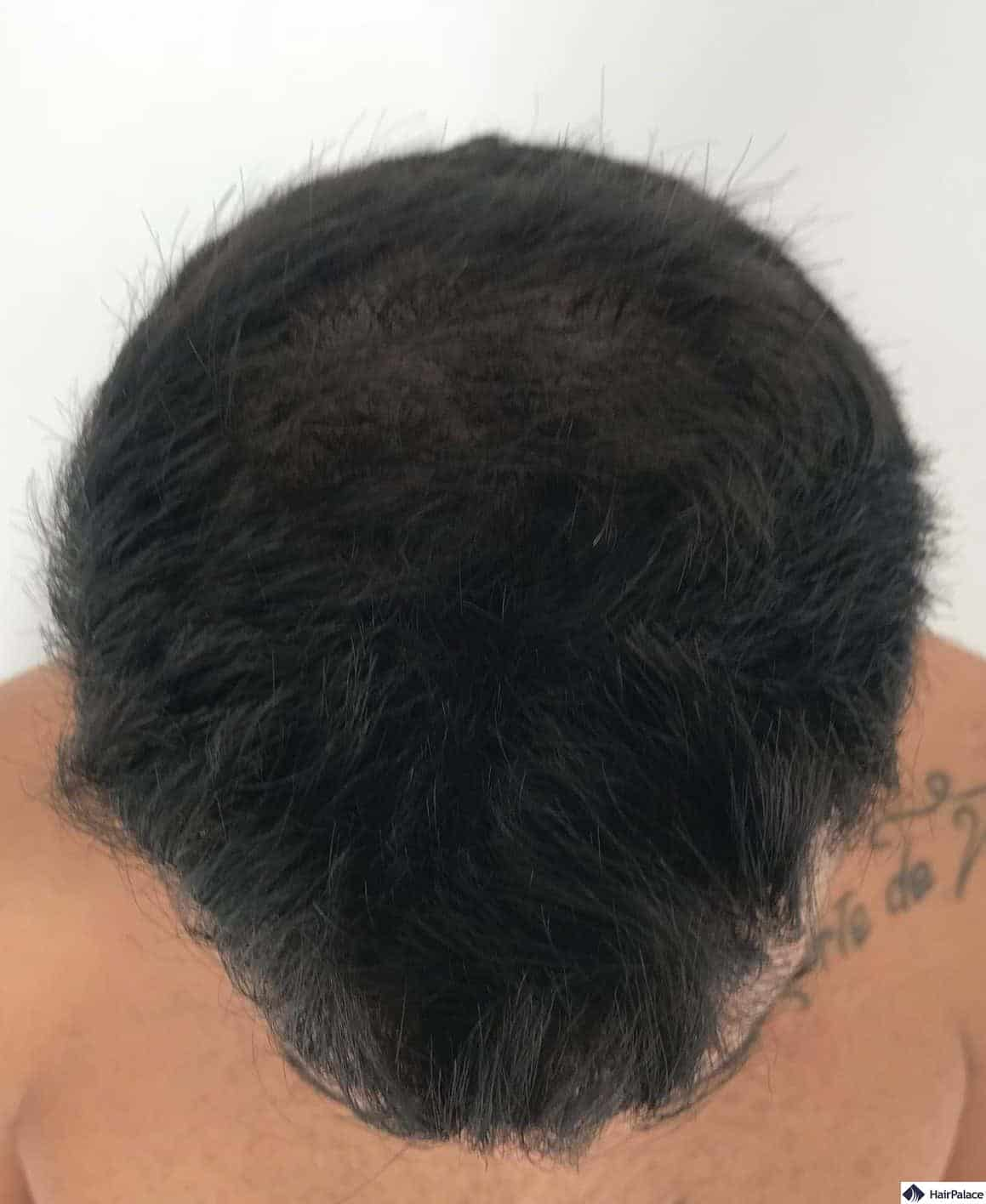 top of Yohann's head 6 months after the surgery with 50% of the implanted hairs grown out