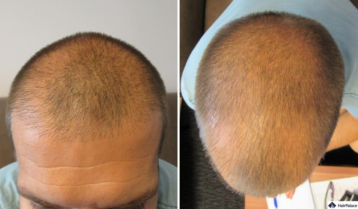 Thinning at the hairline and front, and at the crown as seen at the consultation before the hair transplant