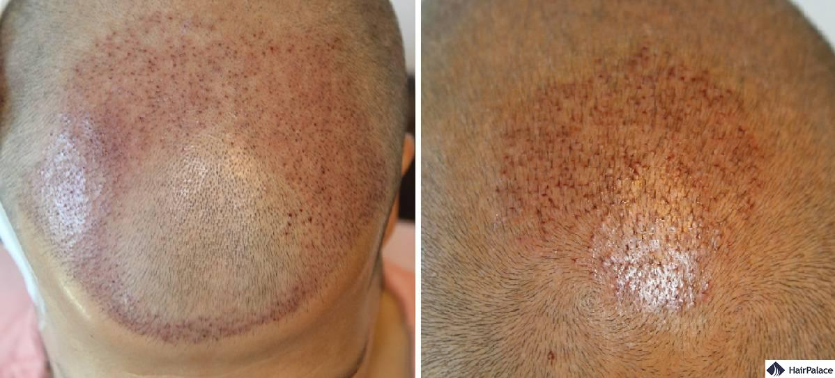 Distribution of the hairs at the front and crown immediately after the hair transplant