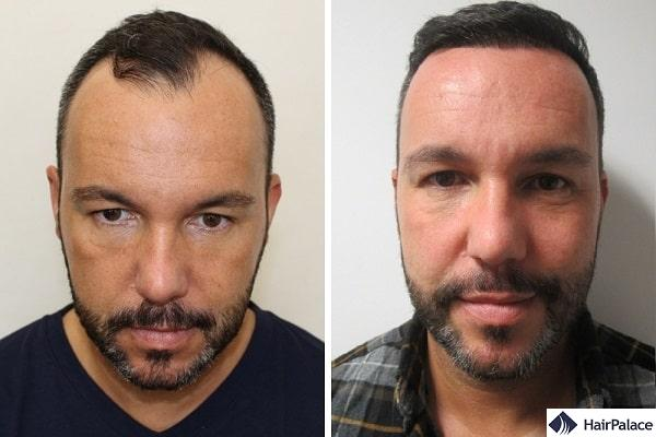 Jerome before and after his hairline hair transplant