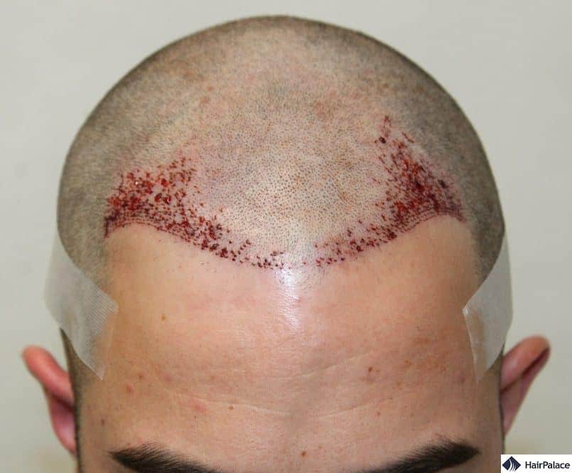 Close-up photo of Chriss hairline after the hair transplant is finished.