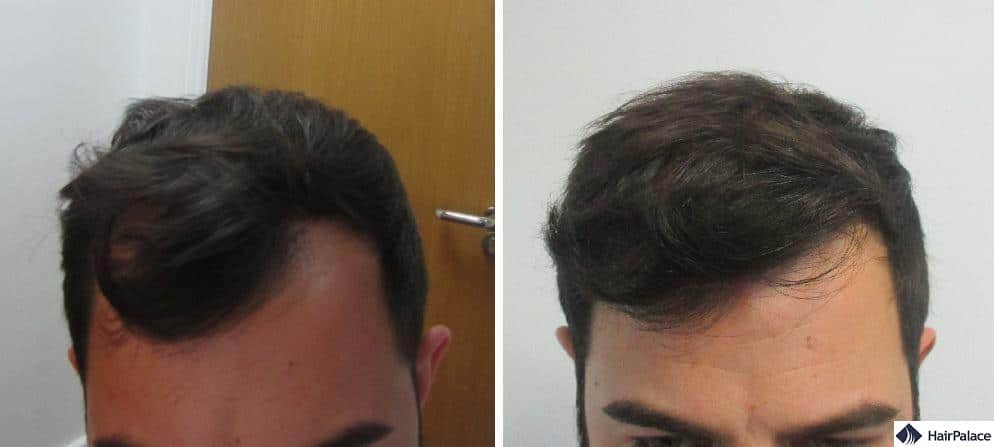 Closeup photos of the frontal area before and after Chris' surgery, showing the change and the natural-looking hairline he achieved with the hair transplant