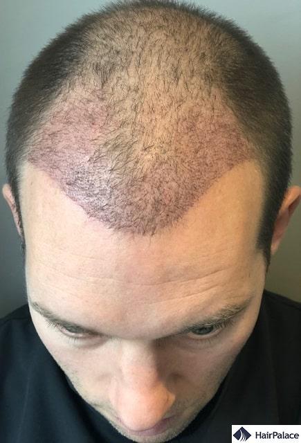 Ezen a 3 hetes kontroll képen jól látható, hogy a beültetett terület még kissé piros. Pörkök már nincsenek, a fejbőr tiszta. Néhány hajszál már elkezdett kihullani.