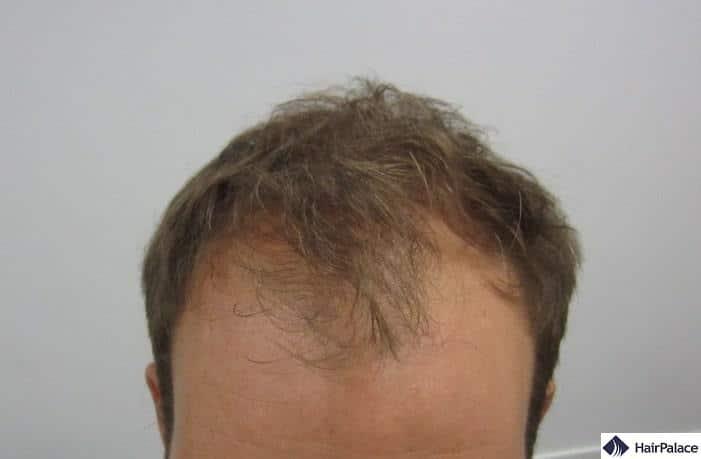 Az állapotfelmérésen készült fotón látható mennyire kikopott Tamás haja a front zónában