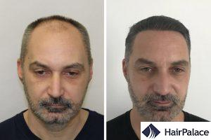 best FUE hair transplant in Birmingham