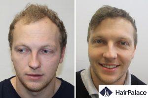 best FUE hair transplant in Bristol