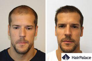 FUE hair transplant in Hungary