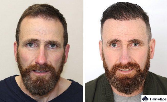 FUE hair transplant in Ireland