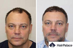 best FUE hair transplant in Leeds