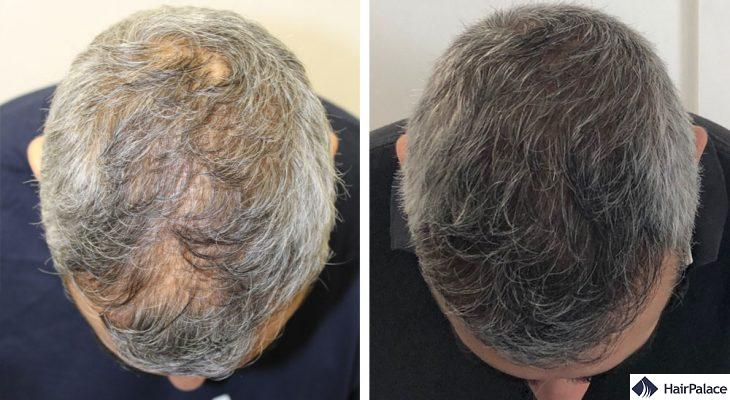 best hair transplant in London