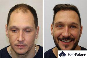 best FUE hair transplant in Paris