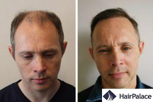FUE hair transplant in Switzerland