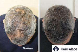 best hair transplant in the UK