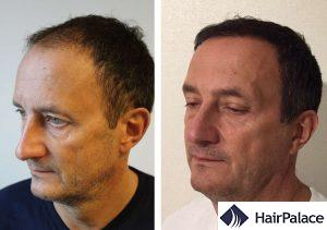 Edinburgh hair transplant result