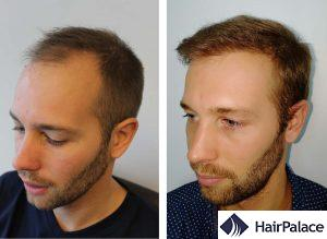 Liverpool hair transplant result