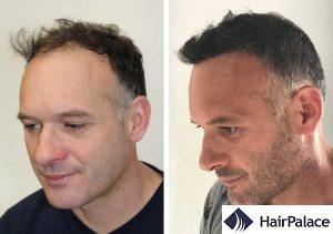 Brighton hair transplant result