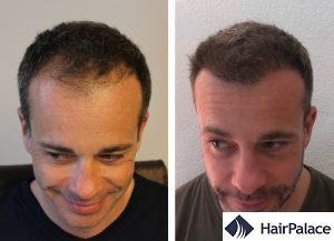 Exeter hair transplant result