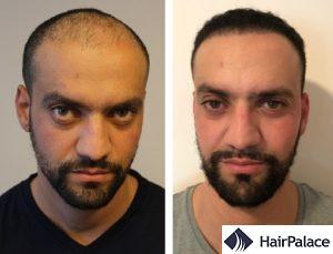 Halifax hair transplant results