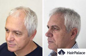 Newcastle hair transplant result