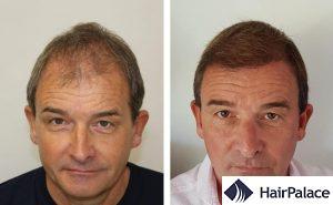 Sunderland hair transplant result