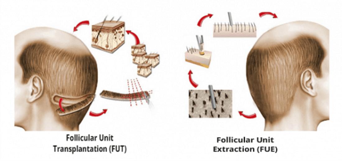 FUT vs FUE2 hair transplant method
