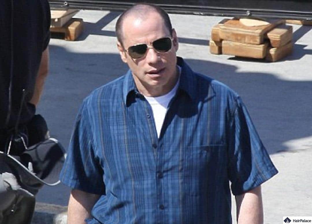 Photo at a film set in 2011 revealing John Travolta's thinning hairline