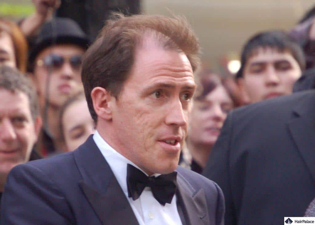 Rob Brydon's hair loss in 2008