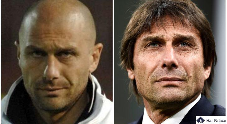 antonio conte before and after his hair transplant