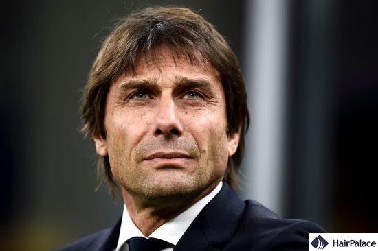 Antonio Conte's hair transplant result