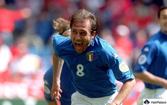 Antonio Conte hair transplant in 2000