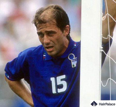 Young Antonio Conte before his hair transplant
