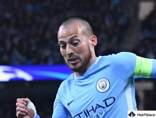 David Silva's bald head in 2017