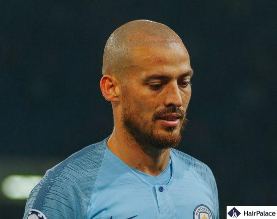 David Silva extended hairline FUE2 method