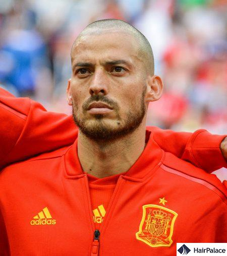 David Silva hair transplant FUE2 safe system