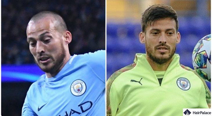 David Silva hair transplant before after FUE2 result