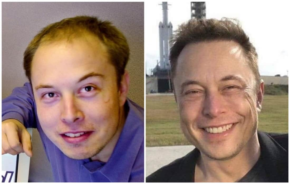 Elon Musk before and after hair transplant