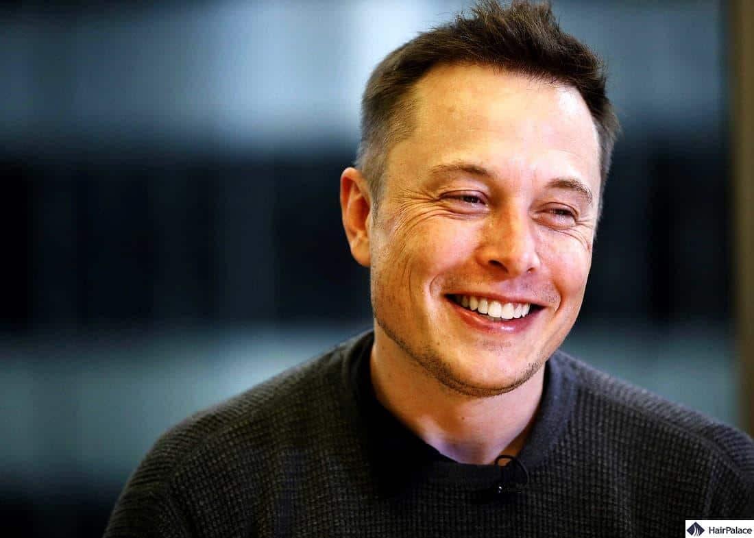 Elon Musk hair transplant result