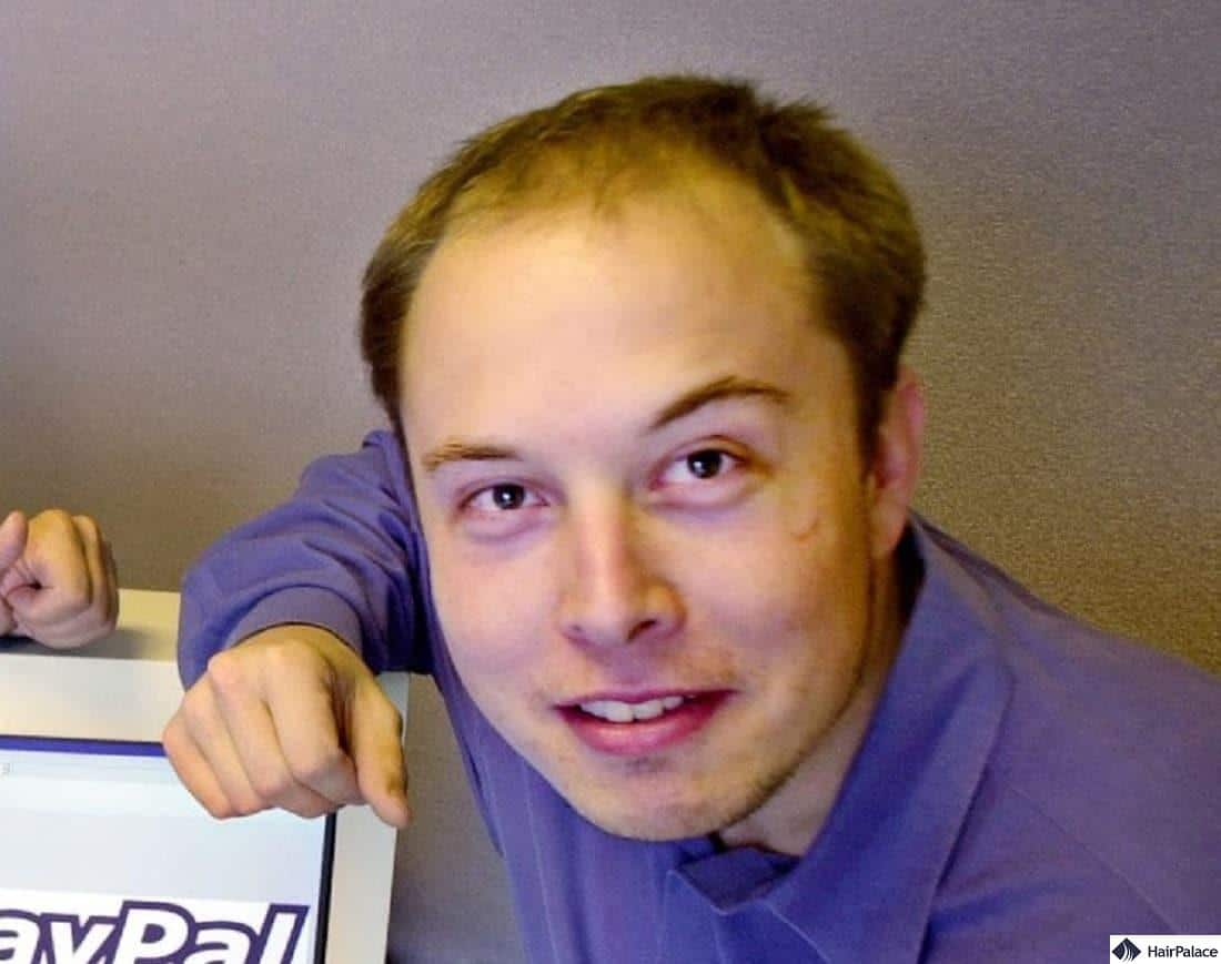 Young Elon Musk suffering from hair loss