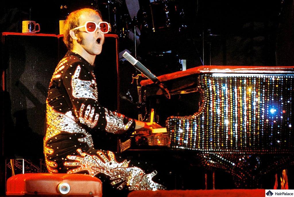 Elton John's hair loss in 1975