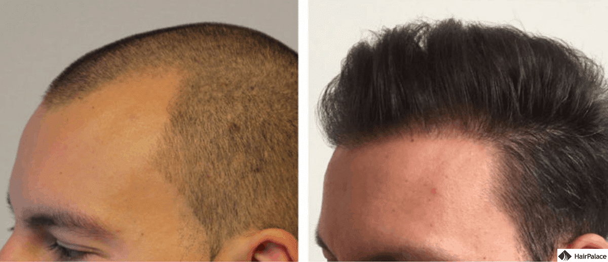 Before and after the FUE2 hair transplant