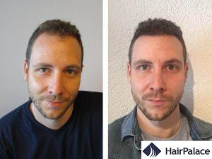 natural result of a hair transplant in Aberdeen