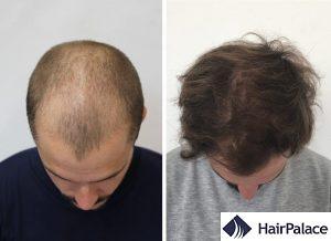 natural, dense Belfast hair transplant result