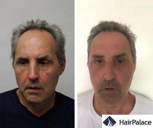 Dense hair transplant result in Bolton