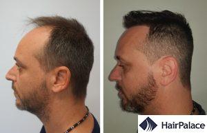 Coventry hair transplant result