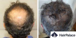 Hull hair transplant result
